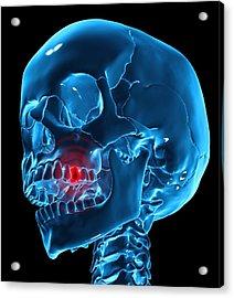 Toothache, Conceptual Artwork Acrylic Print by Andrzej Wojcicki