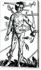 Wound Man 1517 Acrylic Print by Science Source