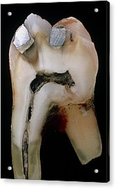 Extracted Molar Acrylic Print by Dr Jeremy Burgess