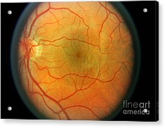 Normal Retina Acrylic Print by Science Source