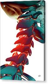 Bones Of The Neck Acrylic Print by MedicalRF.com