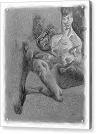 Congenital Deformities  Acrylic Print by Joaquin Abella