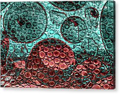 Epidemiology Acrylic Print