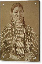 Freckled Face-arapahoe Acrylic Print