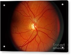 Glaucoma Acrylic Print by Science Source