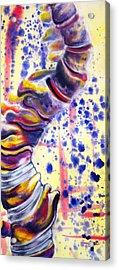 Scoliosis Acrylic Print
