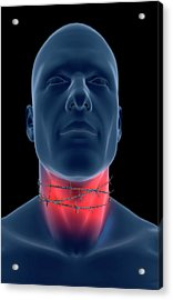 Sore Throat Acrylic Print by MedicalRF.com