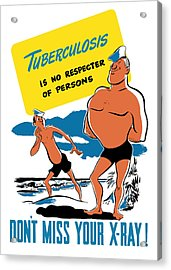 Tuberculosis Is No Respecter Of Persons  Acrylic Print