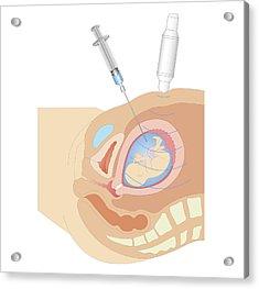 Cross Section Biomedical Illustration Acrylic Print by Dorling Kindersley
