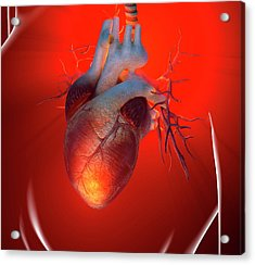 Heart Attack, Conceptual Artwork Acrylic Print by Science Photo Library - Roger Harris