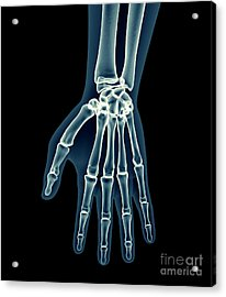 X-ray Human Body Of A Man With Skeleton Acrylic Print