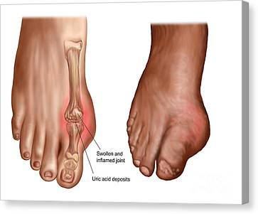 Anatomy Of A Swollen Foot Canvas Print by Stocktrek Images