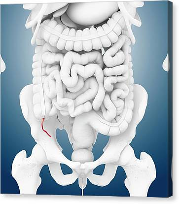 Appendix Canvas Print - Appendix by Springer Medizin