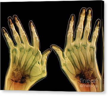 Arthritic Hands, X-ray Canvas Print by Zephyr