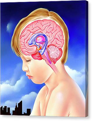 Brain And Childhood Depression Canvas Print