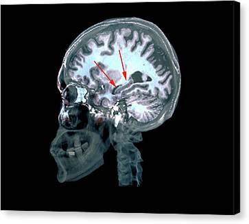 Brain In Alzheimer's Disease Canvas Print by Zephyr
