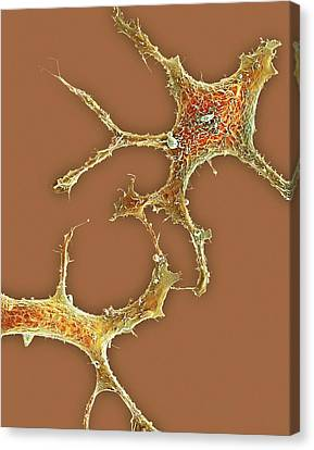 Breast Cancer Cells Canvas Print by Science Photo Library