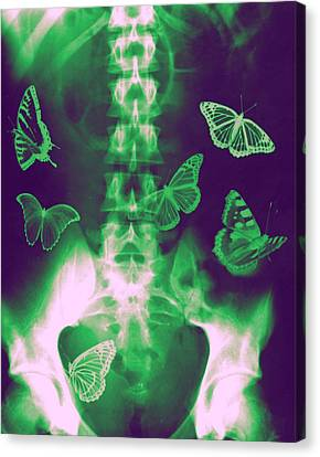 Colourized Canvas Print - Butterflies In The Stomach by Photostock-israel