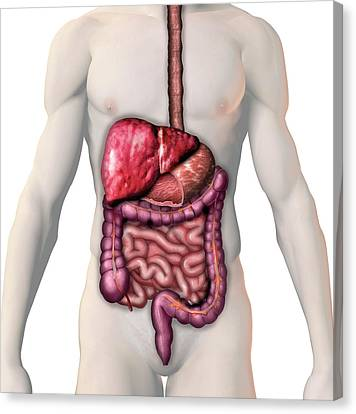 Cirrhosis Of The Liver Canvas Print by Carol & Mike Werner