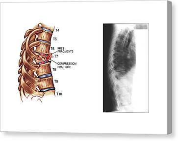 Compression Fracture Of Thoracic Vertebra Canvas Print by John T. Alesi