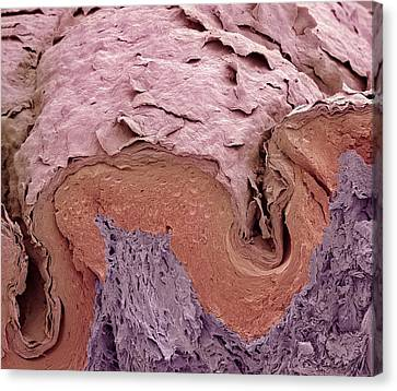 Finger Skin, Sem Canvas Print by Science Photo Library