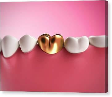 Gold Filling In Tooth Canvas Print by Sebastian Kaulitzki