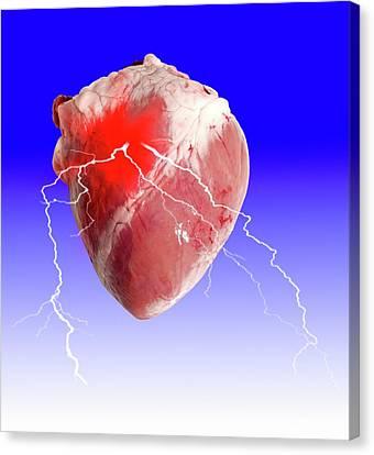 Heart Attack Canvas Print by Victor De Schwanberg
