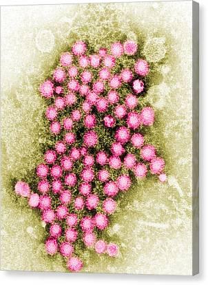 Hepatitis Virus Tem Canvas Print by Science Source