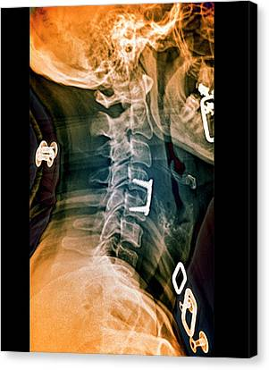 Herniated Spinal Disc After Treatment Canvas Print by Zephyr