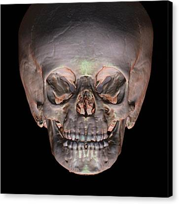 Milk Teeth Canvas Print - Human Baby's Skull by Anders Persson, Cmiv