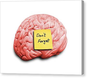 Sticky Note Canvas Print - Human Brain With An Adhesive Note by Victor De Schwanberg