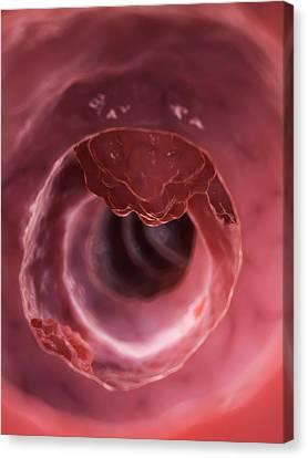 Human Colon Cancer Canvas Print by Sebastian Kaulitzki