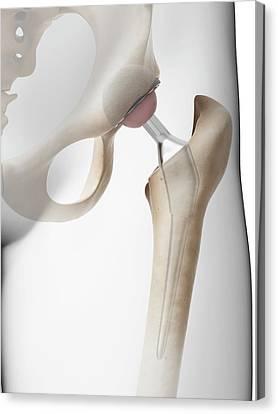 Human Hip Replacement Canvas Print by Sebastian Kaulitzki