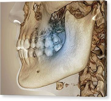 Human Jaw Canvas Print by Zephyr
