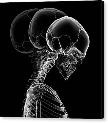 Backward Canvas Print - Human Neck Bending by Sebastian Kaulitzki