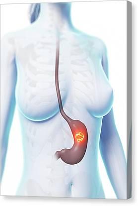 Human Stomach Ulcer Canvas Print by Sebastian Kaulitzki
