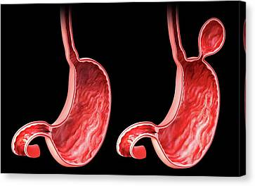 Hernia Canvas Print - Human Stomach With Hernia by Pixologicstudio