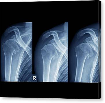 Injured Shoulder Canvas Print by Zephyr