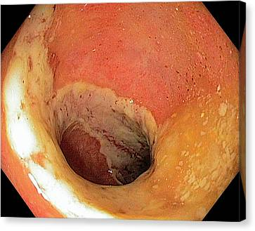 Ischaemic Colitis Canvas Print