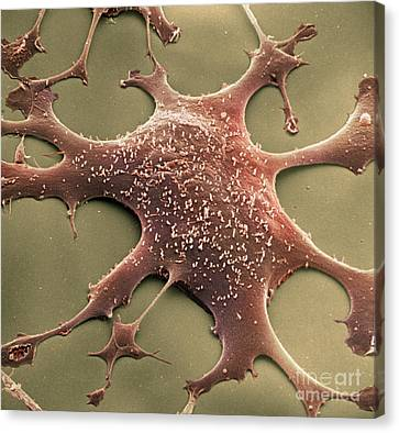Colourized Canvas Print - Mycoplasma by David M. Phillips