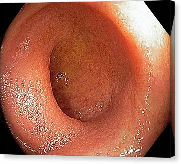 Endoscopy Canvas Print - Normal Terminal Ileum by Gastrolab