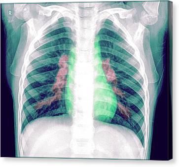 Pneumonia Canvas Print