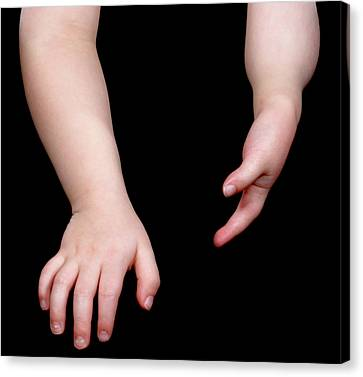 Poland Syndrome Canvas Print by Science Photo Library