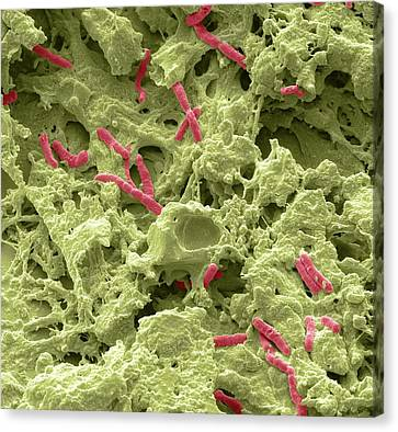 Pseudomonas Lung Infection Canvas Print by Steve Gschmeissner
