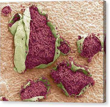Rust Fungus On A Bellflower Leaf Canvas Print by Steve Gschmeissner
