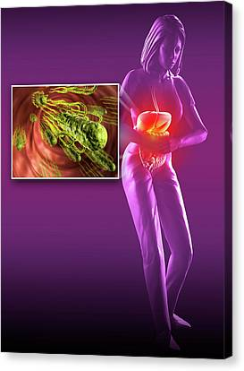 Salmonella Infection Canvas Print by Harvinder Singh