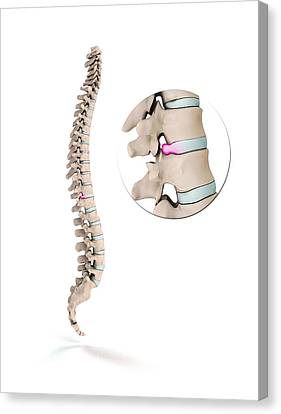 Spinal Disc Prolapse Canvas Print by Mikkel Juul Jensen