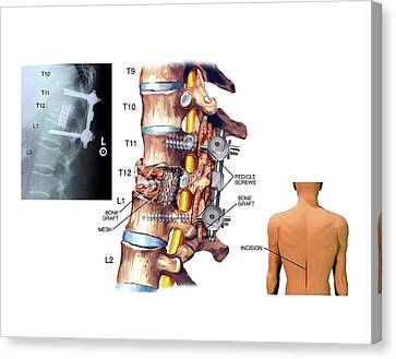 Surgery To Fuse The Thoracic Spine Canvas Print by John T. Alesi