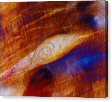 Trichinella Spiralis Canvas Print by Eye of Science