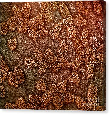 Colourized Canvas Print - Uterine Surface by David M. Phillips